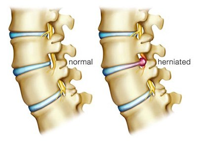 How To Treat Herniated Discs With Physical Therapy