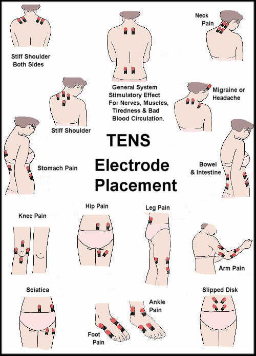 Tens unit electrode placement guide prohealthcareproducts com